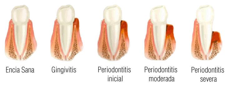periodoncia_03