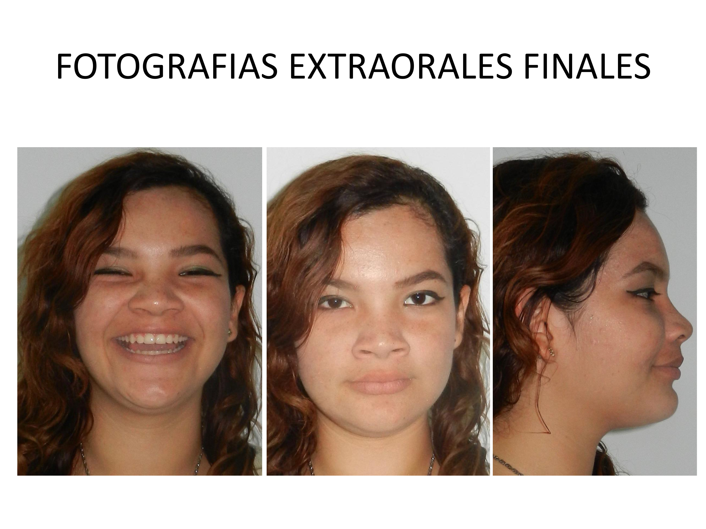 FOTOGRAFÍAS EXTRAORALES